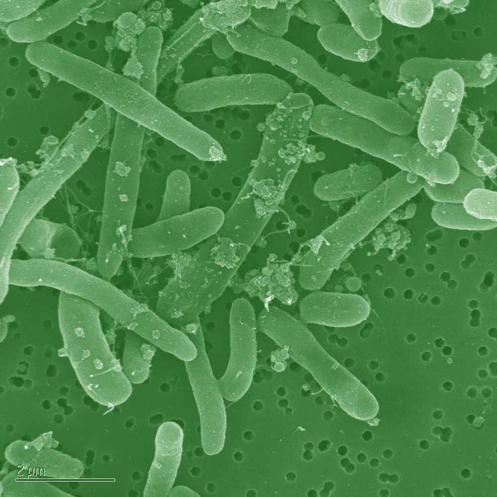 Recognizing diesel fuel algae